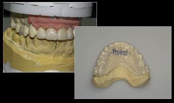 Veneers were manufactured