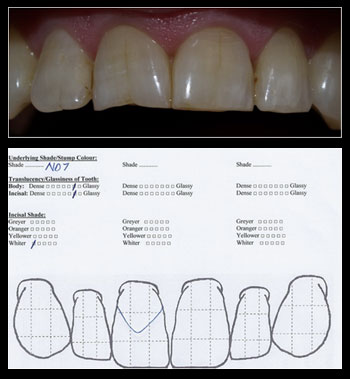 Step 4 -  Translucency/Glassiness of Tooth