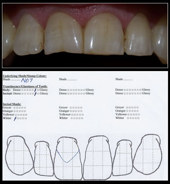 Step 5 – Incisal Shade
