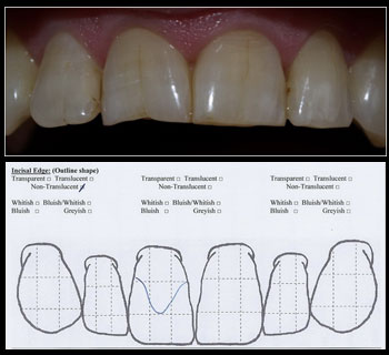 Step 6 – Incisal Edge (Outline shape)